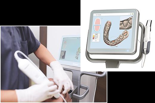 光学3Dスキャナー(iTero)を用いたシミュレーションによる矯正治療