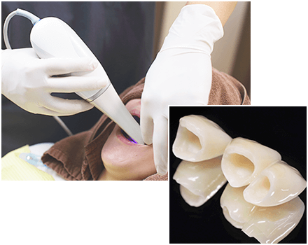 口腔内3Dスキャナーの光学印象でセラミック治療