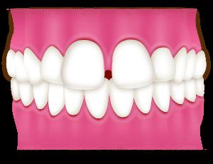 すきっ歯(空隙歯列弓)