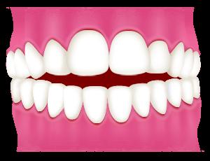 開咬(前歯が噛み合わない)