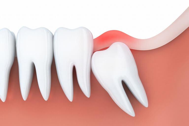 歯周炎のリスクが高まる